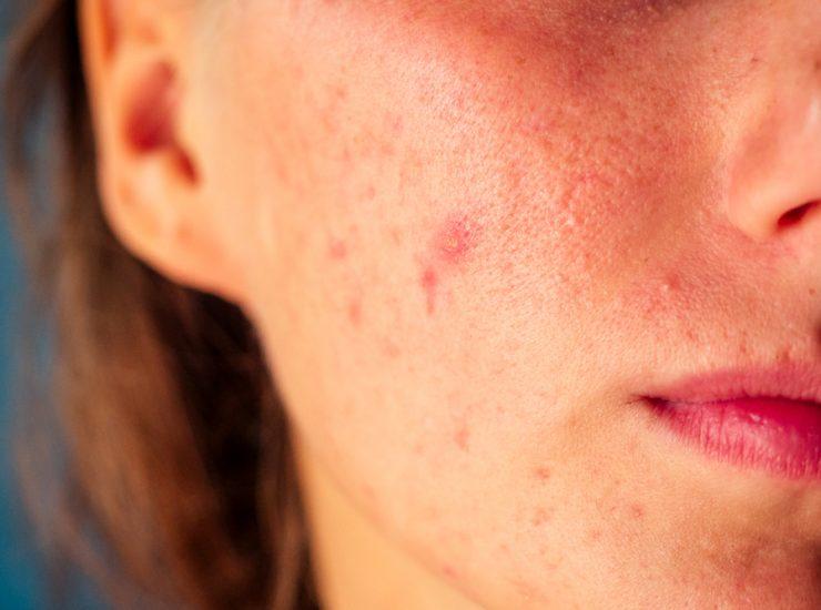 Il trattamento dell'acne grazie a un antibiotico
