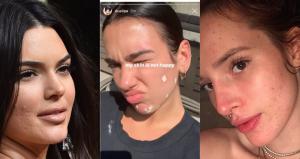 Le celebrities che lottano contro l'acne